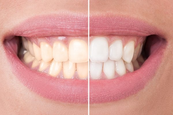 tooth whitening banbury