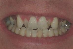 orthodontic treatment banbury