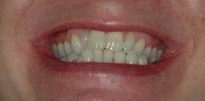 teeth straightening process